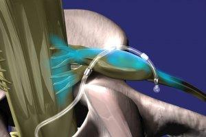 Ratgeber: Schmerzen lindern von Kopf bis Fuß - Innovative Therapiemethode